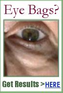 eyeliss