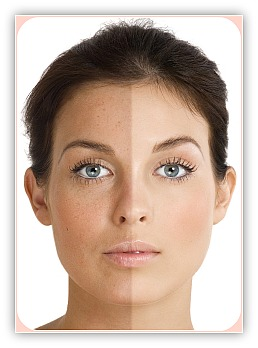 http://www.skincareresourcecenter.com/image-files/sun-damaged-skin.jpg