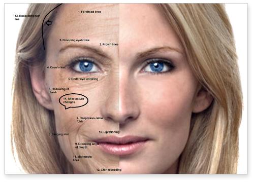 aging-skin-symptoms
