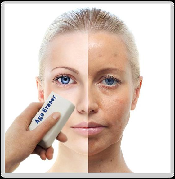 remove-age-spots