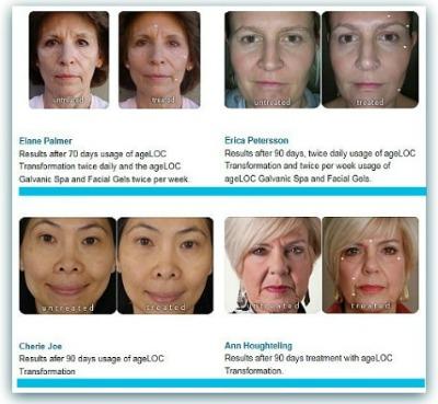 AgeLoc Treatment