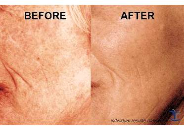 before-after-anti-aging-skincare