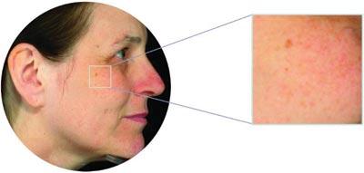 Hyperpigmentation Problems