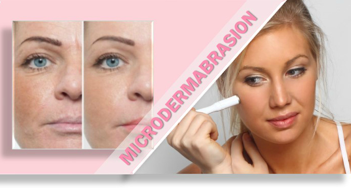 home-microdermabrasion
