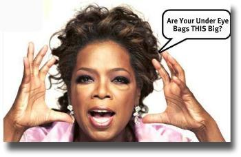 Puffy Under Eye Bags