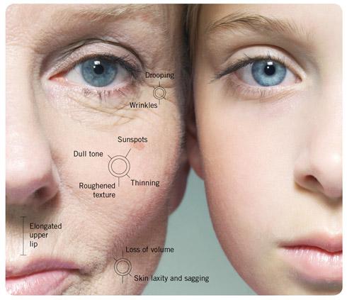 symptoms-of-aging-skin