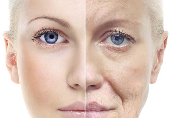 Symptoms of Aging Skin
