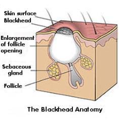 Description of Blackheads