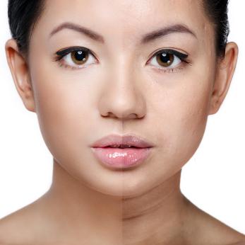 uneven skin tone